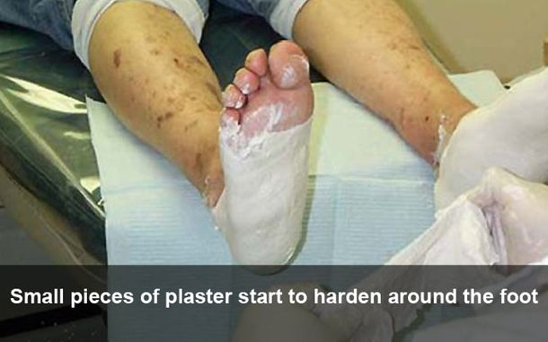 Small pieces of plaster start to harden around the foot