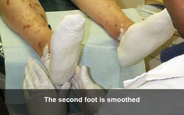 The second foot is smoothed