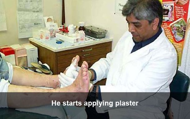 He starts applying plaster