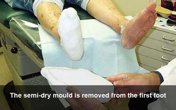 The semi-dry mould is removed from the first foot